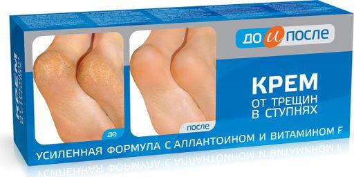До и После Крем от трещин в ступнях, крем для ног, 50 мл, 1шт.